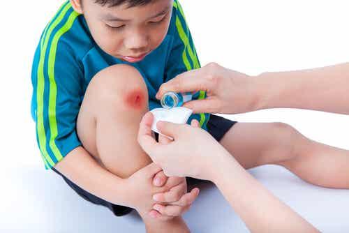 Remedios caseros para curar y cicatrizar las heridas de los niños