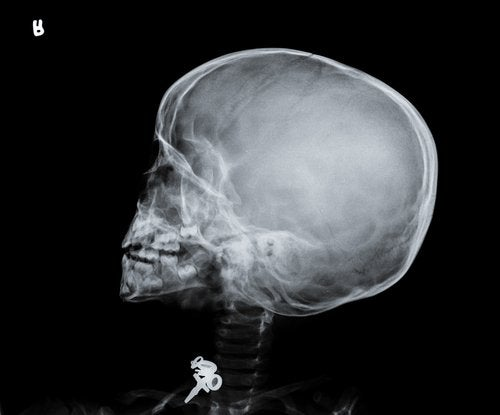 ¿Qué es el síndrome del bebé sacudido?