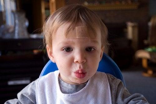 Consejos para disimular las cicatrices de los niños