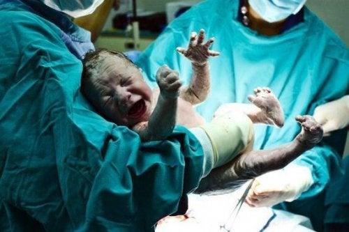 ¿Nacer por cesárea podría ser perjudicial para la salud?