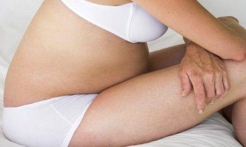 Recomendaciones para tratar las hemorroides del embarazo