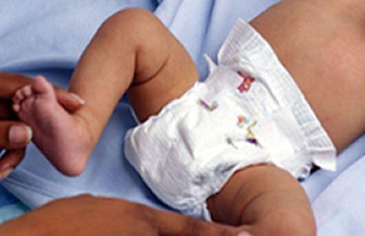 Causas de la candidiasis en el bebé