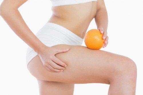 Las piernas y glúteos son las partes donde es más frecuente la celulitis después del embarazo.