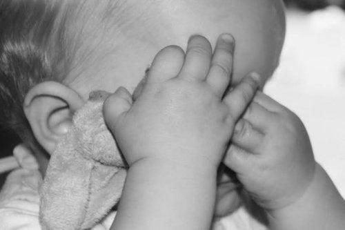 Conoce todo sobre la microcefalia e hidrocefalia