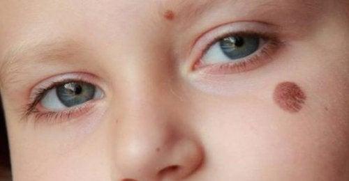 niño con manchas de nacimiento