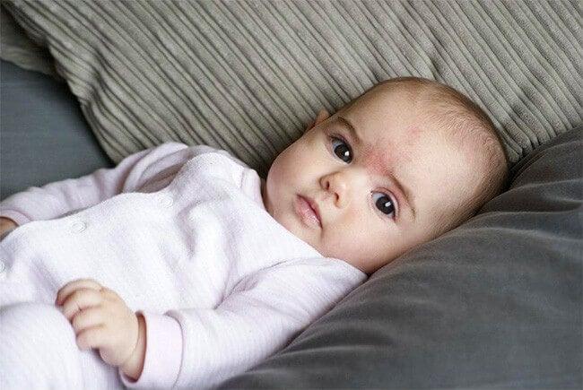 ¿A qué se deben las manchas de nacimiento?