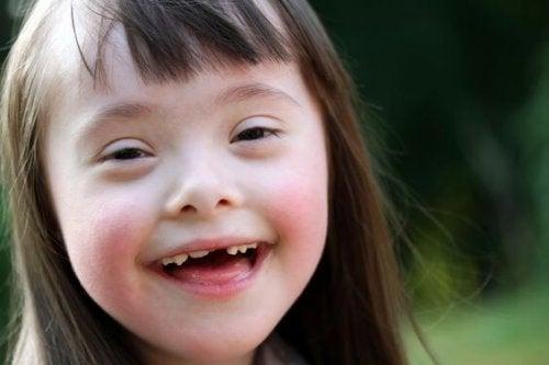 Síndrome de Down, ¿cómo superar las barreras comunicativas?