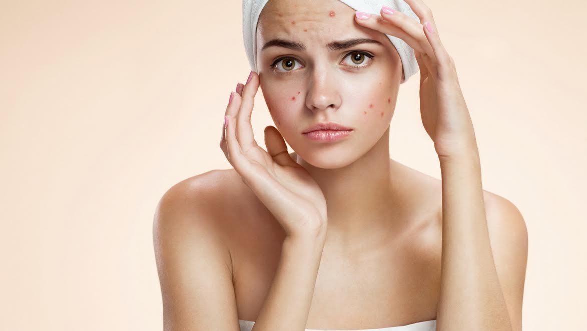 ¿Cómo prevenir la aparición de acné durante el embarazo?