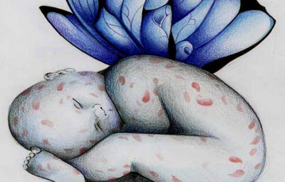 La enfermedad de los niños con piel de mariposa