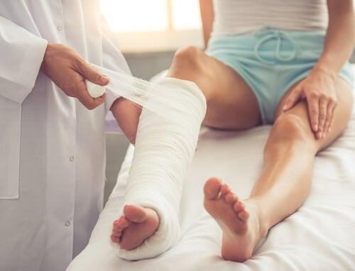 Médico colocando una escayola en la pierna de una mujer.