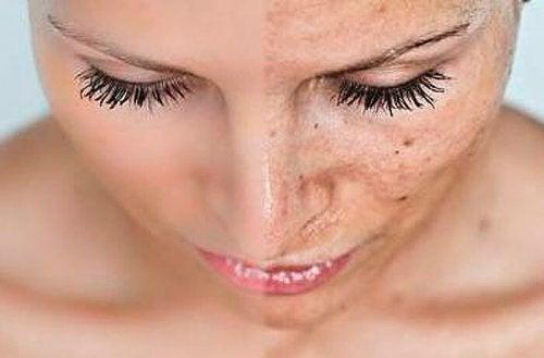 Si se producen estos cambios en la piel durante el embarazo, se debe disminuir el tiempo que se expone la piel al sol.
