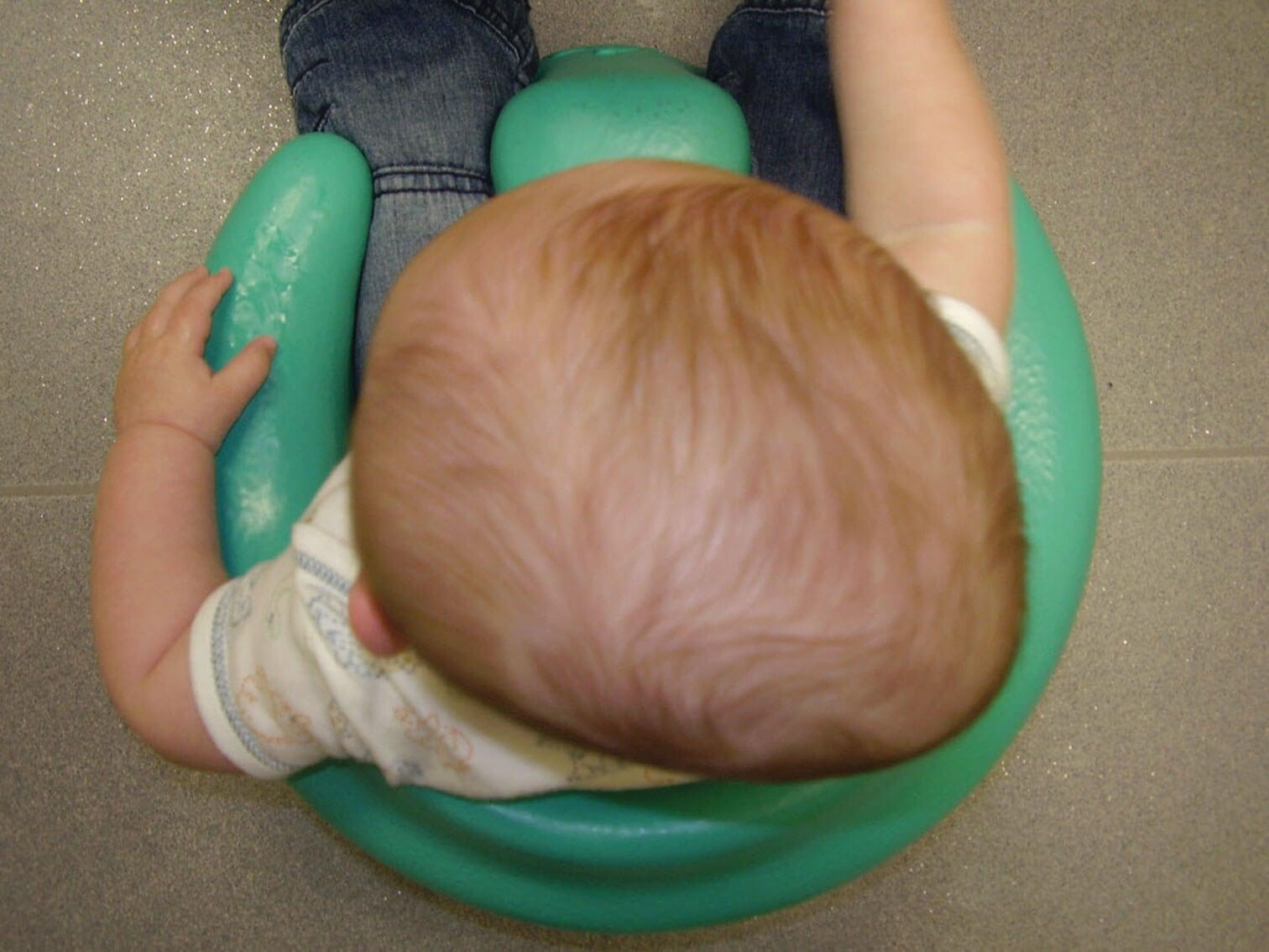 Le crâne d'un bébé qui présente le syndrome de la tête plate.
