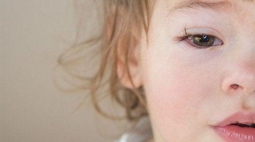 Las causas de la conjuntivitis en bebés son principalmente tres: por virus, bacterias o por alérgenos.