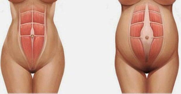 diástasis abdominal 2