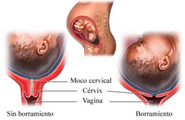borramiento uterino 2