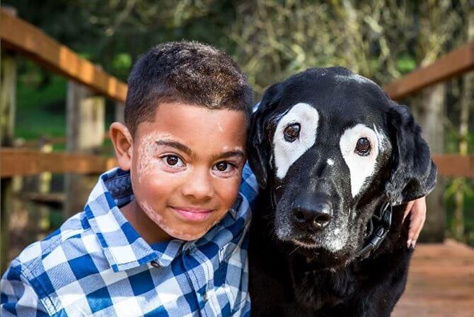 Este niño supera la depresión al conocer a un perro con la misma enfermedad