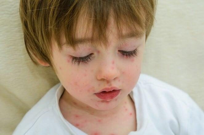 Mi hijo tiene varicela