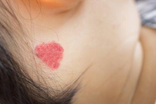 La mayoría de los angiomas no presentan ningún riesgo para la salud