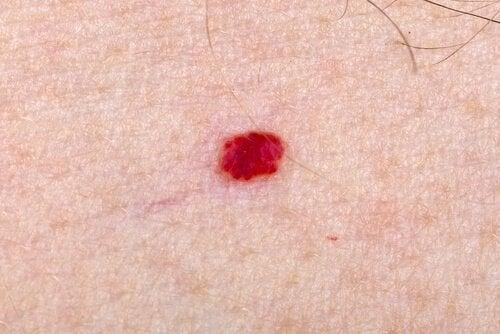 ¿Qué hago si mi hijo tiene angiomas en la piel?
