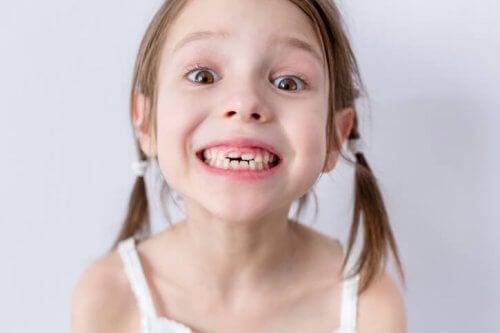La caída de los dientes en los niños: cuándo ocurre y en qué orden