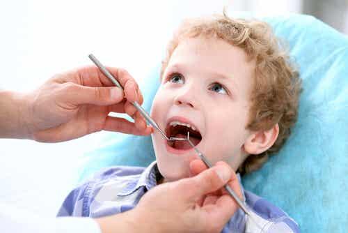 ¿Cómo prevenir la caries dental en los niños?