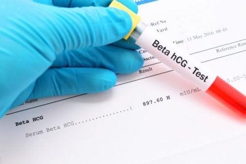 El análisis de sangre permite conocer con mayor precisión si estás o no embarazada.