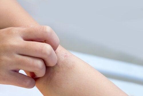 Manchas blancas en la piel de mi bebe de 1 ano