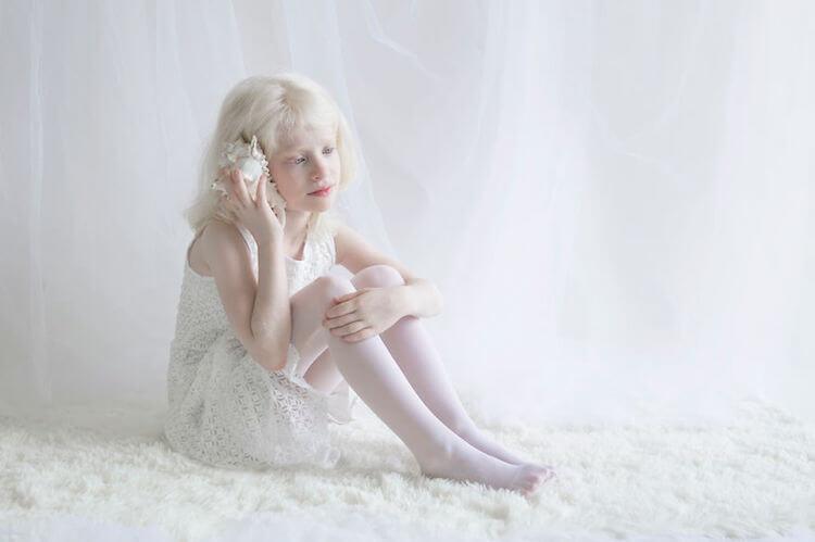 El albinismo en niños.