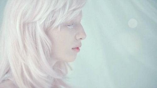 El albinismo en niños