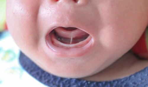 Anquiloglosia o frenillo lingual corto en niños