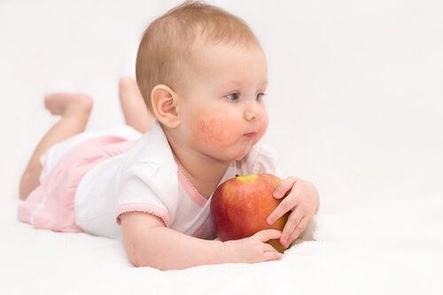 El herpes en niños es bastante común.
