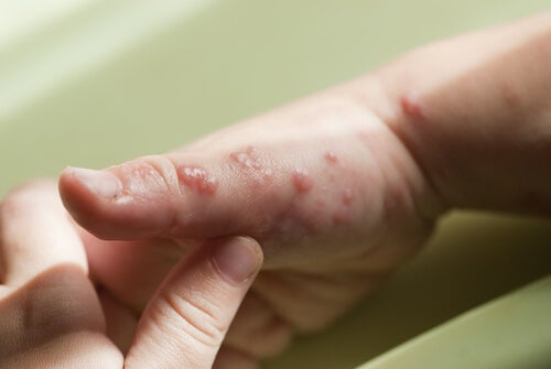 El herpes no tiene cura definitiva.