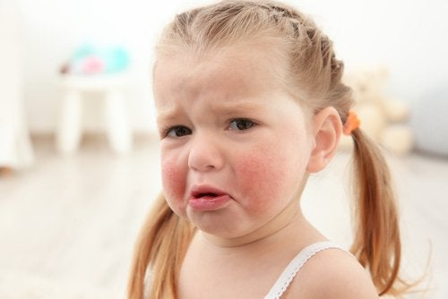 Las alergias alimentarias comunes en niños afectan a una importante cantidad de pequeños.