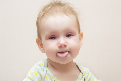 La conjuntivitis en bebés.