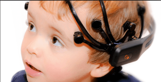 Un electroencefalograma para evaluar las crisis de ausencia en niños.