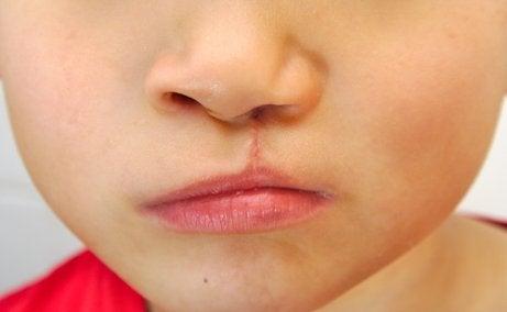 Los niños con labio leporino a veces presentan problemas de habla.