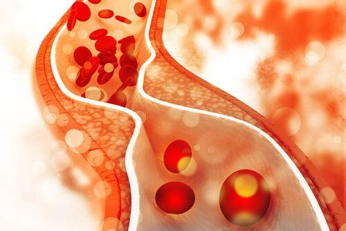 Placa de LDL en las arterias. El colesterol infantil.