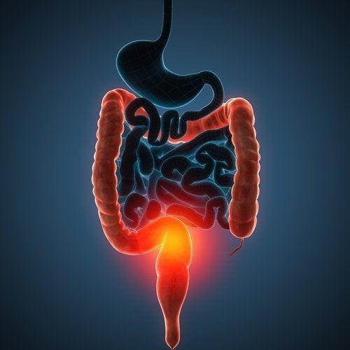 La enfermedad de Crohn en niños puede afectar todo el trasto digestivo.