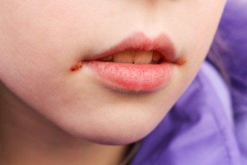 Las boqueras en niños: causas y tratamiento