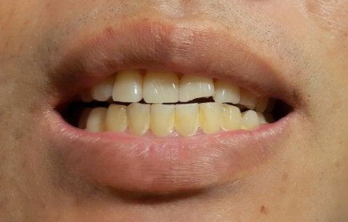 Porque se ponen amarillos los dientes delos bebes