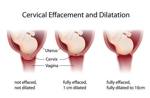 El proceso de dilatación puede tardar varias horas.