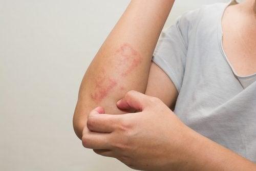 La psoriasis a veces resulta difícil de identificar.