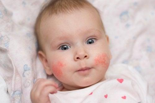Dermatitis atópica en niños: Cómo prevenir los brotes
