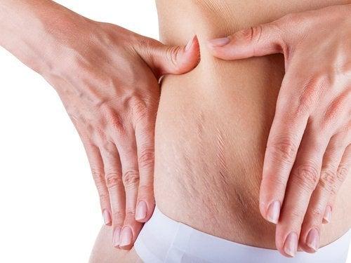 Para eliminar las estrías durante el embarazo, las cremas y exfoliantes son de gran ayuda.