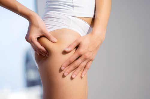 ¿Cómo combatir la celulitis después del embarazo?