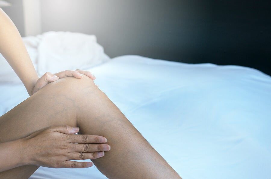 ¿Cómo eliminar las varices durante el embarazo?
