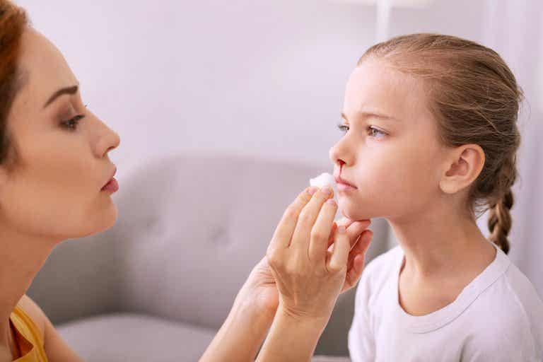 Hemorragias nasales en niños
