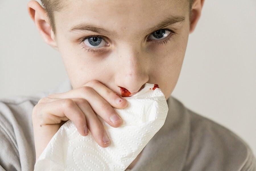 ¿Por qué a mi hijo le sale sangre de la nariz?