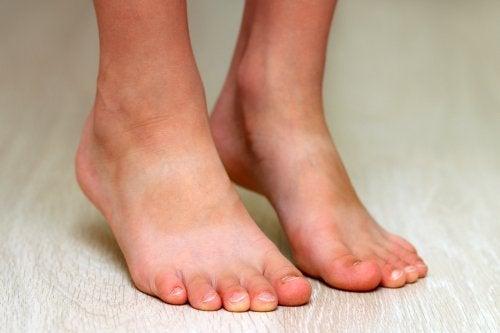 Por lo general, los pies planos en niños no causan dolor.