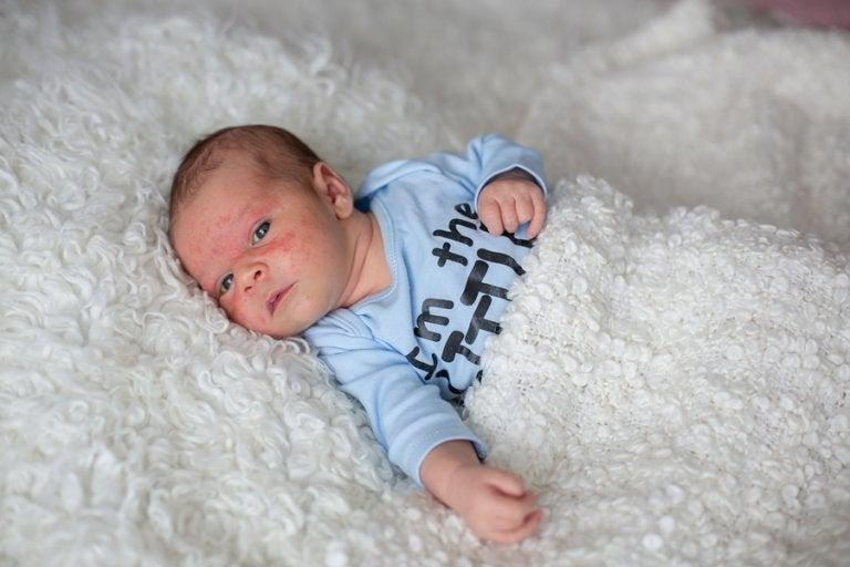 Acné en los recién nacidos: ¿Qué hacer?